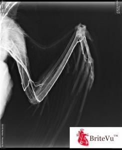 golden eagle arteriovenogram 9-22-13 BV